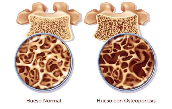 Comparativa Hueso normal y con osteoporosis | Josemi Entrenador Personal Madrid