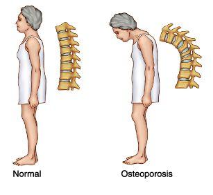 Osteoporosis y Cifosis dorsal | Josemi Entrenador Personal Madrid