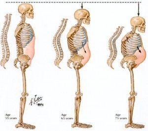 Osteoporosis disminucion talla | Josemi entrenador Personal Madrid