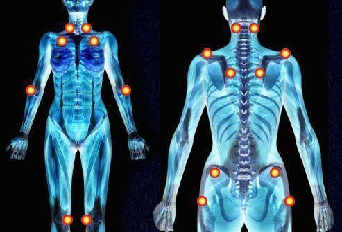 Fibromialgia-puntos-dolor-Josemi-Entrenador-Personal
